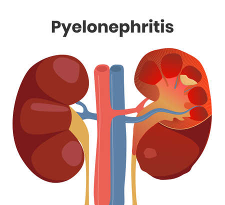 Illustration of the accute pyelonephritis with the pus inside the kidney and severe inflammation. Normal kidney is on the left with the affected kidney on the right Illusztráció