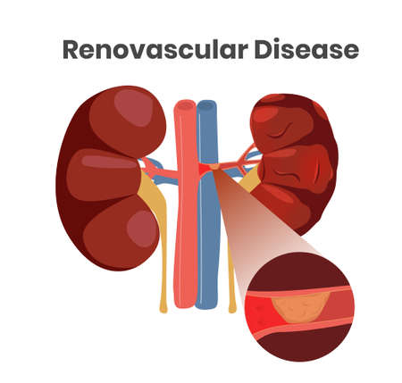 Illustration vectorielle de la maladie rénovasculaire. Illustration du thrombus dans l'artère des reins gauches. Close up illustration des navires avec plaque