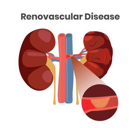 Illustrazione vettoriale della malattia renovascolare. Illustrazione del trombo nell'arteria del rene sinistro. Illustrazione ravvicinata delle navi con placca