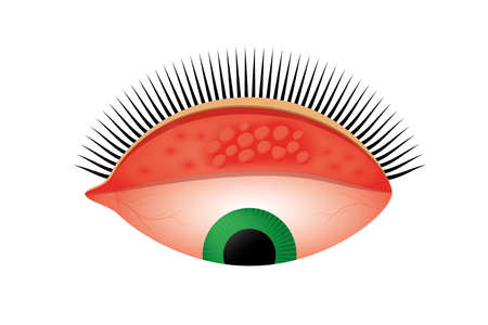 Trachoma vector illustration. Follicles on the upper eyelid indicate second stage of the eye disease