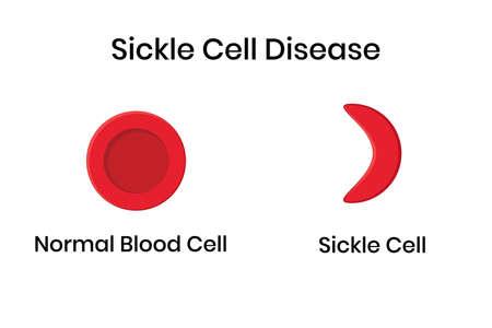 Sichelzellenanämie. Normaler Erythrozyt mit verzerrt