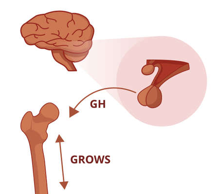 Pitutary gland is producing the growth hormone. Hypophysis GH hormone causes a bone to grow Vektorové ilustrace