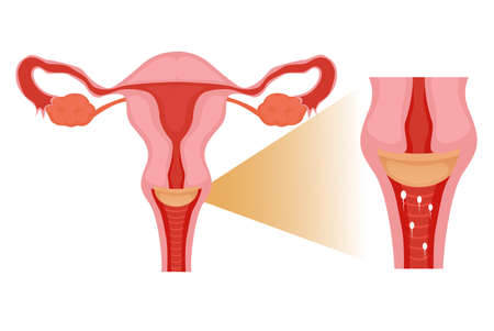 Diaphragm in the uterus. Contraception method preventing the sperm from coming inside the cervix illustration Vector Illustration