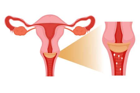 Diaphragme dans l'utérus. Méthode de contraception empêchant les spermatozoïdes de pénétrer à l'intérieur du col de l'utérus illustration Vecteurs