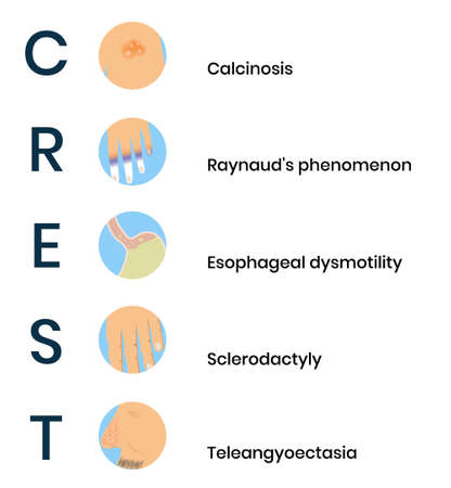 CREST syndrome icons. System sclerosis symptoms vector illustration