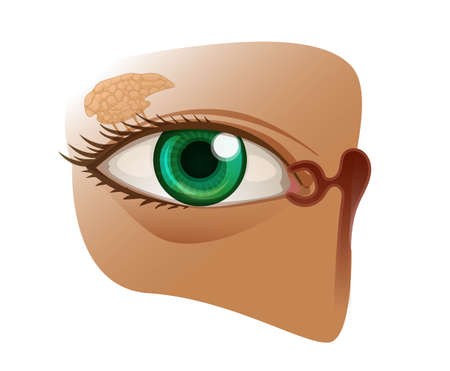 Lacrimal gland anatomy with eye and lacrimal duct vector illustration