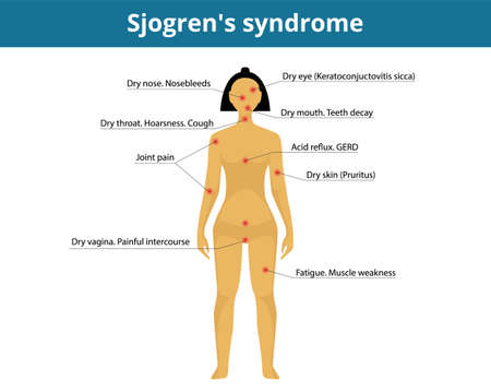 Illustration of the womans silhouette with symtoms of the dry syndrome Ilustracja