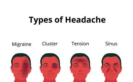 Vector illustration of the woman suffering from the pain in her head. Four types of headaches depicted: migraine, tension headache, sinus pain and cluster headache