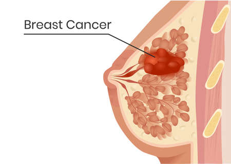 Breast cancer structure. Vector illustration of the lobular carcinoma with the minimal changes of the ducts
