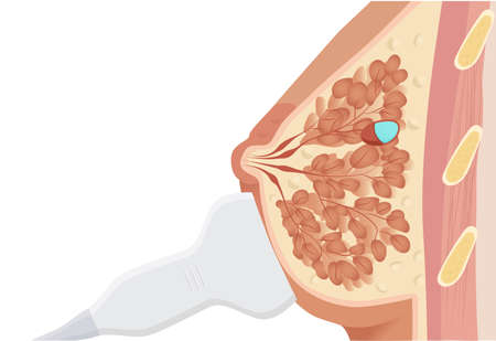 Ultrasound probe is on the breast visualizing cystic lesion of the breast