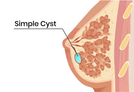 Simple breast cyst anatomy illustration. Vector illustration of the cystic lesion withing the breast duct Zdjęcie Seryjne - 162212708