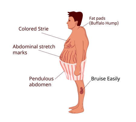 Cushing syndrome signs and symptoms. Illustration of the obese man with cushing disease Zdjęcie Seryjne - 163069192