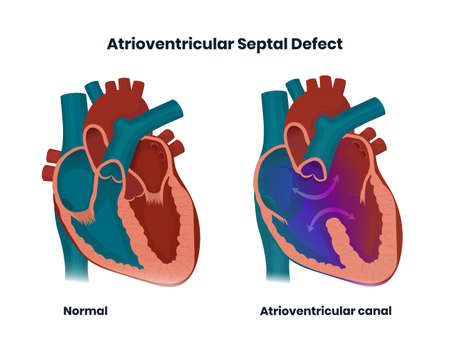 Ventricular septal defect with normal heart anatomy. Illustration of  the congenital defect of the ventricular wall