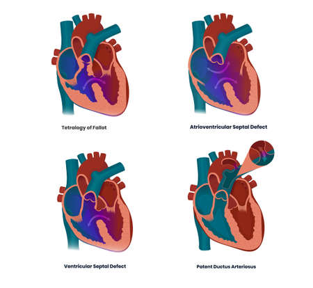 Vector illustration of the heart defects linked to the Down syndrome: vectricular and arterioventricular  septal defects, tetralogy of Fallot and patent ductur arteriosus