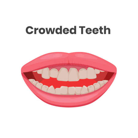 illustration of the crowded teeth. Opened mouth with crowded yellow teeth