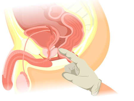 Digital rectal examination vector illustration. Illustration of the finger eximining the prostate of the caucasian male Ilustracja