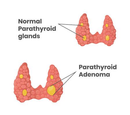 Normal parathyroid glands with parathyroid adenoma comparison vector illustration