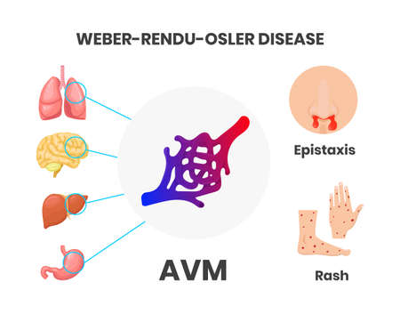 Osler-Rendu-Weber disease signs and symptoms vector illustration