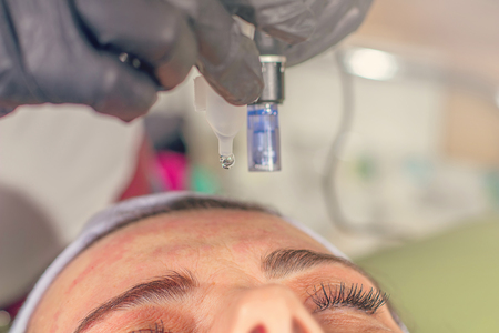 Needle mesotherapy treatment on a woman face.  Standard-Bild