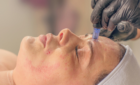 Needle mesotherapy treatment on a woman face.  写真素材