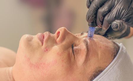 Needle mesotherapy treatment on a woman face.  Standard-Bild