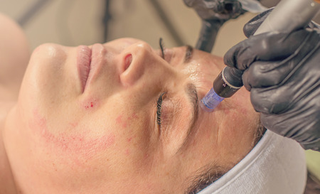 Needle mesotherapy treatment on a woman face.  Stock fotó