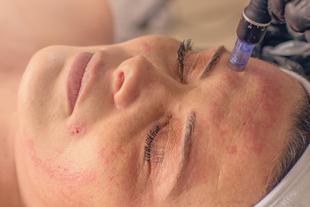 Needle mesotherapy treatment on a woman face. 스톡 콘텐츠