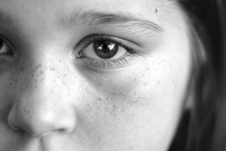 Black and white closeup of a girls face with expressive eyes, reflections in eye, freckles Banco de Imagens