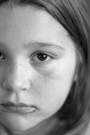 Black and white closeup of girls dirty face, with freckles