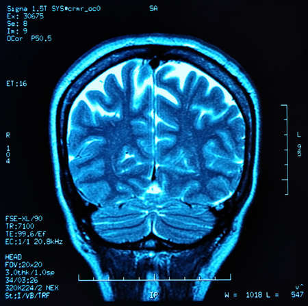 magnetic resonance image  MRI  of the brain Stock Photo - 12648975