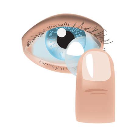 Realistische Stil Vektor-Illustration mit Auge und Kontaktlinse Standard-Bild - 81231276
