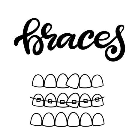 Lettering illustration about dental healthcare with the image of braces on teeth. EPS10. Vector image of the stages of orthodontic treatment for posters for dental clinic.