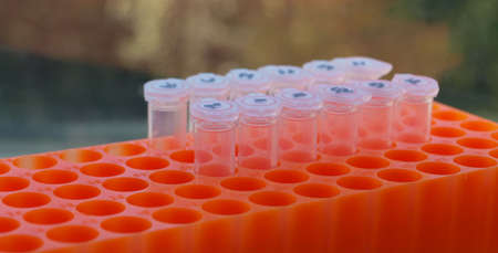 Laboratory test tubes in an orange rack photo
