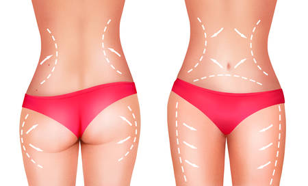 naked female body: Lines, showing surgery on female body. Vector.