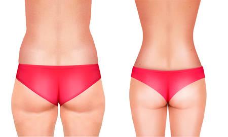 cellulit: Vonalak, bemutatva a műtét női test. Vector.