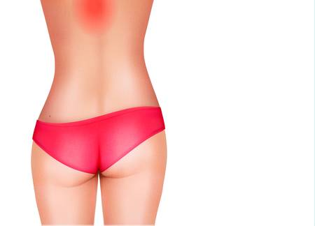 woman back: Vector concept of back pain.