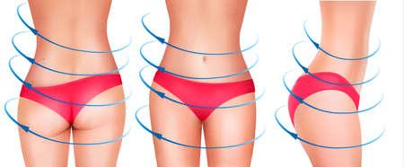 liposuction: Fit female body in underwear. Vector.