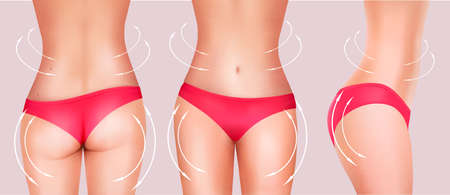 liposuction: Collection of slender female bodies in bikini. Vector.