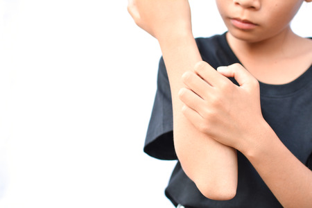 little Asian girl scratch itch hand on white background