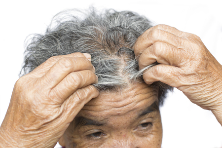 Old woman felt a lot of anxiety about hair loss issue on white background, scalp problem concept