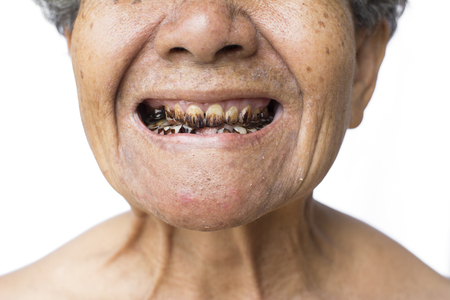 Close up old face woman and teeth on white background,concept oral health