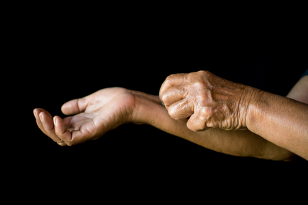 Old hands itching on black background, dermatitis concept Stock Photo
