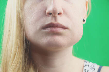 Teeth Problem. Gumboil, flux and swelling of the cheek. Closeup Of Beautiful Sad Girl Suffering From Strong Tooth Pain. Attractive Female Feeling Painful Toothache, Dental Health And Care Concept Stock Photo