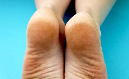 Cleaning foot feet with a saw or brush. Cleaning the feet of the fungus
