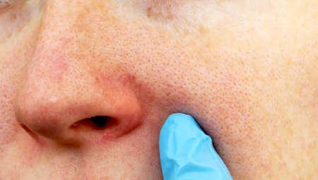 Cuperose op de neus van een jonge vrouw. Acné op het gezicht. Onderzoek door een arts Stockfoto