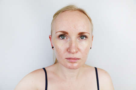 Oily and problem skin. Portrait of a blonde girl with acne, oily skin and pigmentation