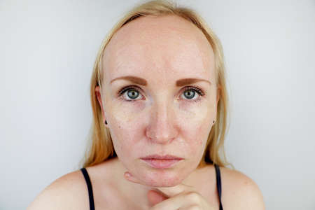 Oily and problem skin. Portrait of a blonde girl with acne, oily skin and pigmentation 版權商用圖片 - 120358891