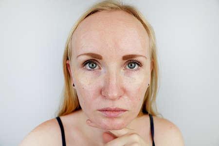 Vette en probleemhuid. Portret van een blond meisje met acne, vette huid en pigmentvlekken