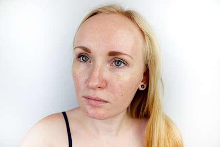 Pieles grasas y problemáticas. Retrato de una chica rubia con acné, piel grasa y pigmentación.