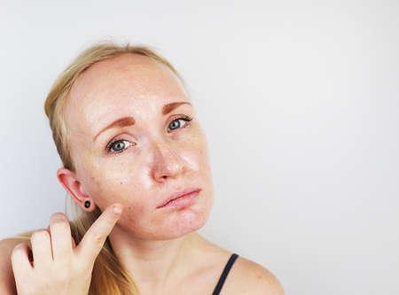 Vette en probleemhuid. Portret van een blond meisje met acne, vette huid en pigmentvlekken Stockfoto